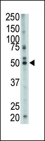 FDFT1 Antibody (PA5-12163) in Western Blot