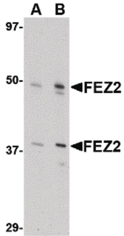 FEZ2 Antibody (PA5-20459) in Western Blot