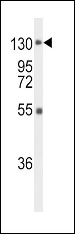 FGFR1 Antibody (PA5-25979) in Western Blot