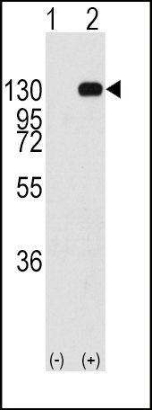 FGFR1 Antibody (PA5-14646) in Western Blot