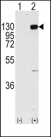 FGFR1 Antibody (PA5-14648)