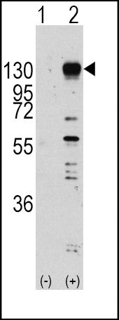 FGFR1 Antibody (PA5-14649)