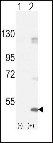 FGFR1 Antibody (PA5-14650) in Western Blot