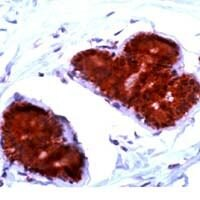 FHIT Antibody (PA1-37690)