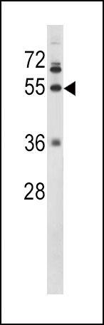 Fibrinogen gamma Antibody (PA5-13528) in Western Blot