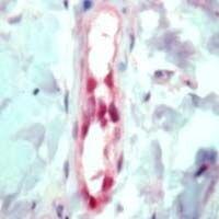 FLI1 Antibody (PA1-37705) in Immunohistochemistry