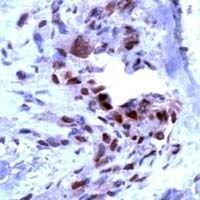 VEGF Receptor 1 Antibody (PA1-37710)