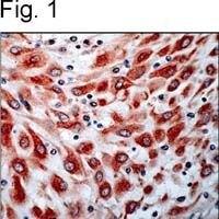 VEGF Receptor 3 Antibody (PA1-37711)