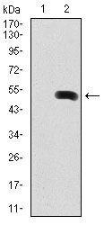 Fibronectin Antibody (MA5-17075) in Western Blot