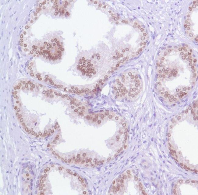FOXA1 Antibody (MA5-16364) in Immunohistochemistry