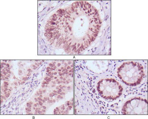 FOXA2 Antibody (MA5-15542)