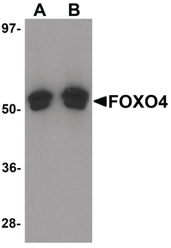 FOXO4 Antibody (PA5-20975) in Western Blot