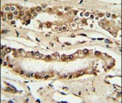 FOXP1 Antibody (PA5-26848) in Immunohistochemistry