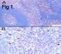 FOXP3 Antibody (PA1-9044) in Immunohistochemistry