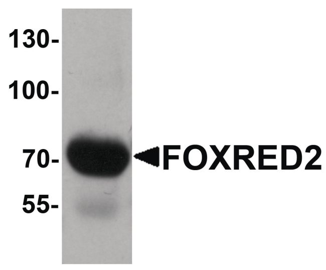 FOXRED2 Antibody (PA5-34345) in Western Blot