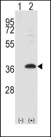 FRAT1 Antibody (PA5-11491) in Western Blot