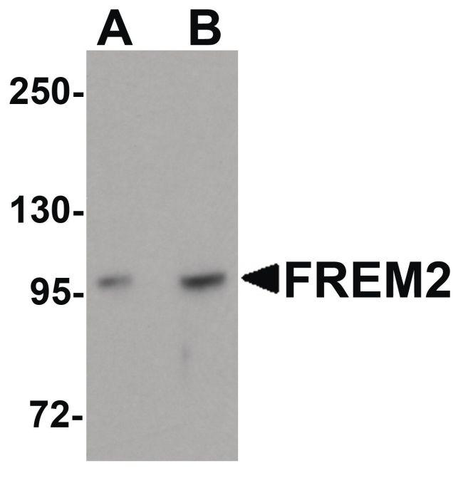 FREM2 Antibody (PA5-20982) in Western Blot