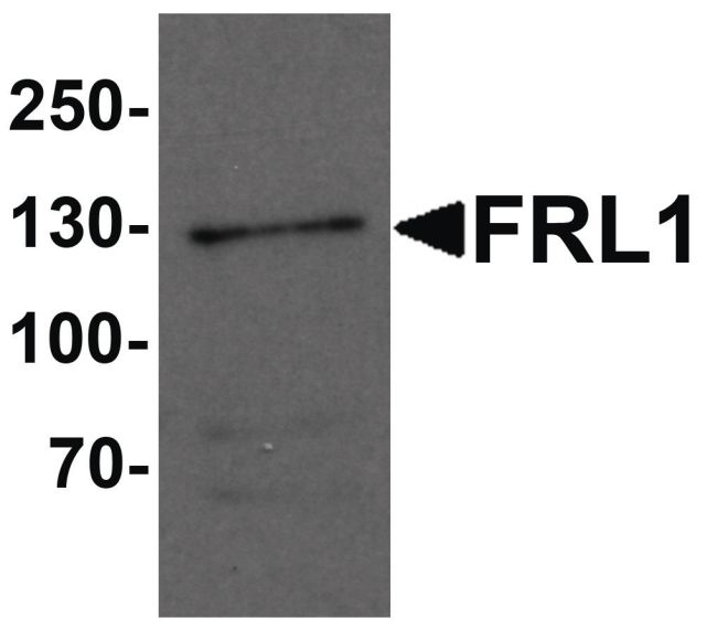 FMNL1 Antibody (PA5-34477)