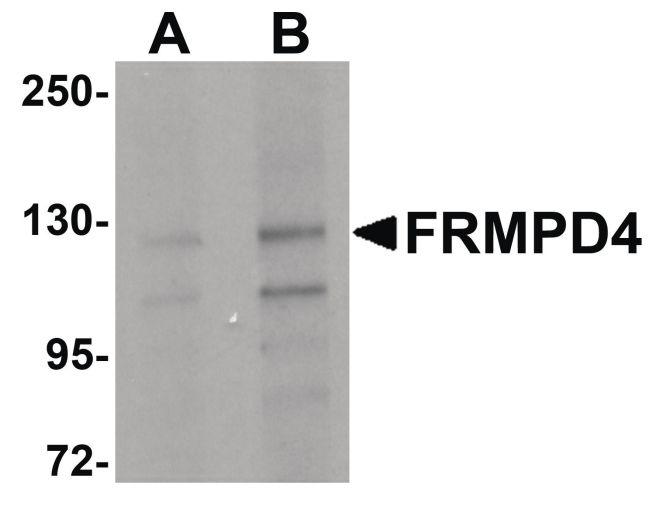 FRMPD4 Antibody (PA5-20841) in Western Blot