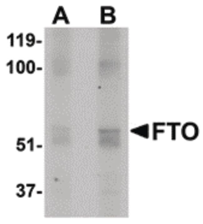 FTO Antibody (PA5-20736) in Western Blot