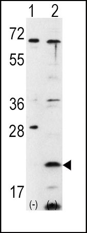 FXN Antibody (PA5-13410) in Western Blot