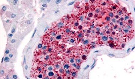 FZD9 Antibody (PA5-32773) in Immunohistochemistry (Paraffin)