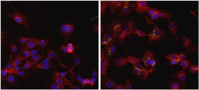 Ferritin Antibody (MIF2501)