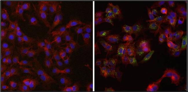 Ferritin Antibody (MIF2502) in Immunofluorescence
