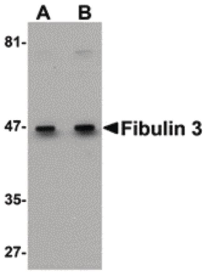 Fibulin 3 Antibody (PA5-20761) in Western Blot