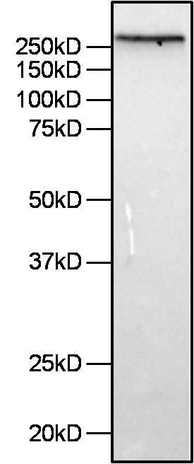 Filamin A Antibody (MA5-11705) in Western Blot