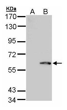 FPGS Antibody (PA5-27914)