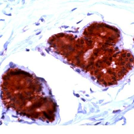 FHIT Antibody (PA5-32418) in Immunohistochemistry