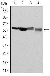 G6PD Antibody (MA5-15918) in Western Blot