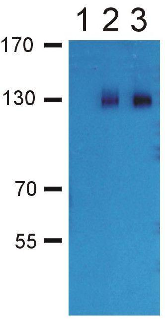 GABBR2 Antibody (PA1-10032) in Western Blot