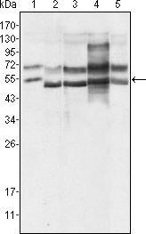 GABPA Antibody (MA5-15419) in Western Blot
