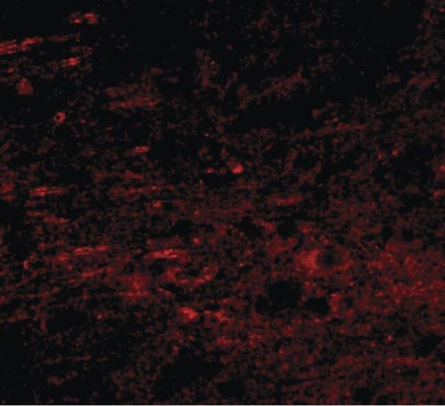 GALNT10 Antibody (PA5-20786) in Immunofluorescence