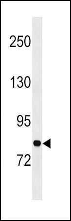 GARS Antibody (PA5-15148)