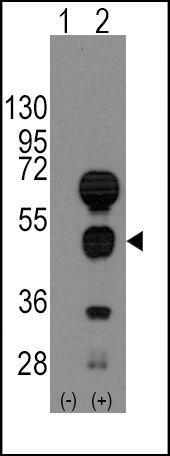 GATA4 Antibody (PA5-11438) in Western Blot