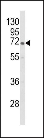 GBE1 Antibody (PA5-26515) in Western Blot