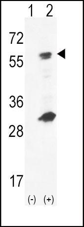 GCK Antibody (PA5-15073) in Western Blot