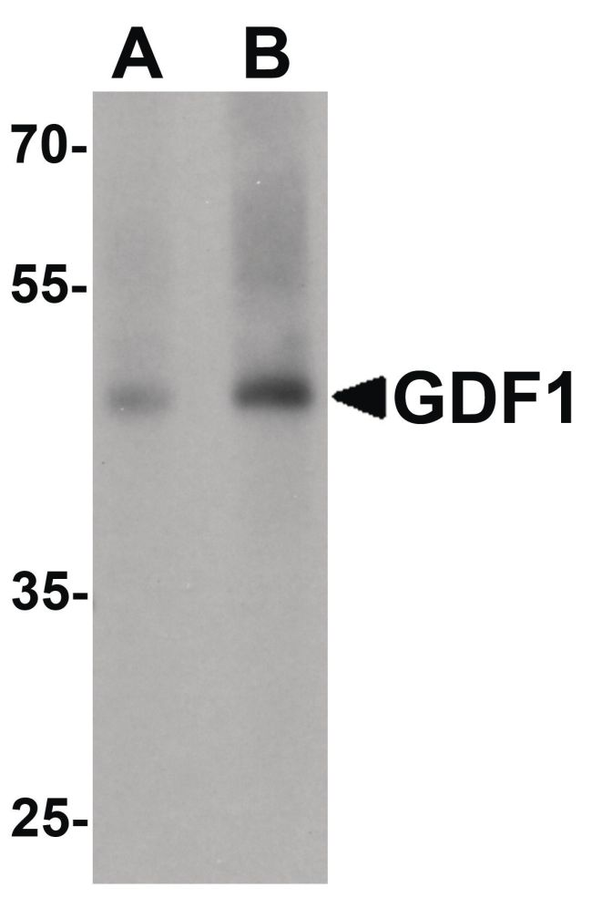 GDF1 Antibody (PA5-34473) in Western Blot