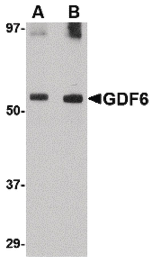GDF6 Antibody (PA5-20568)