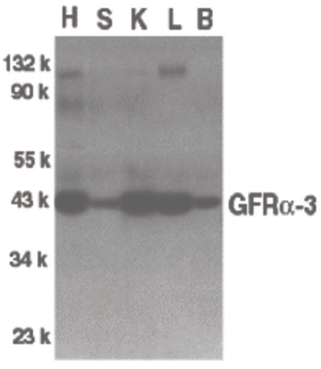 GFR alpha-3 Antibody (PA5-19875) in Western Blot