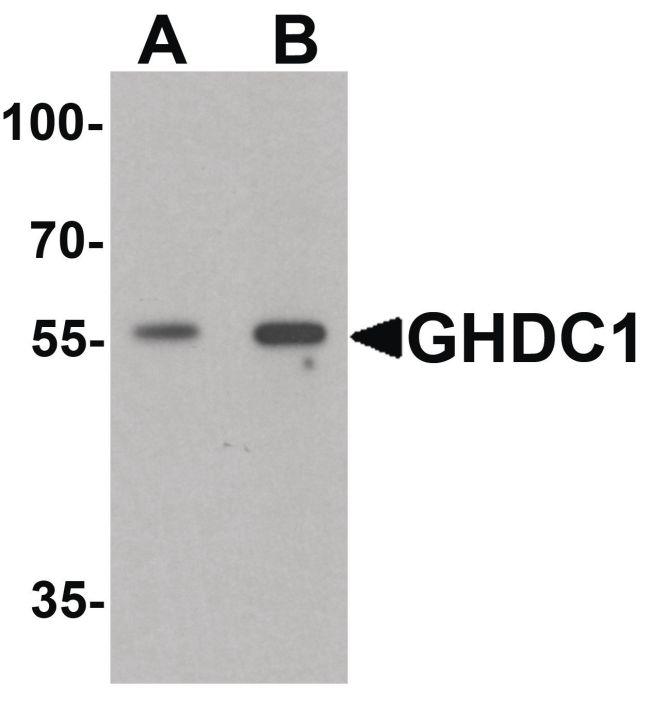 GHDC Antibody (PA5-34464) in Western Blot