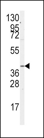 GNA12 Antibody (PA5-15279)