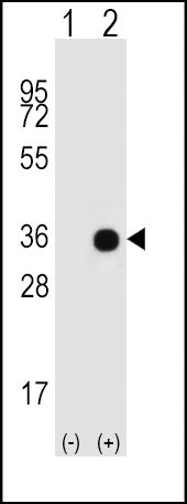GNAO1 Antibody (PA5-26142) in Western Blot