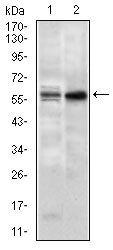 GNL3 Antibody (MA5-17082) in Western Blot