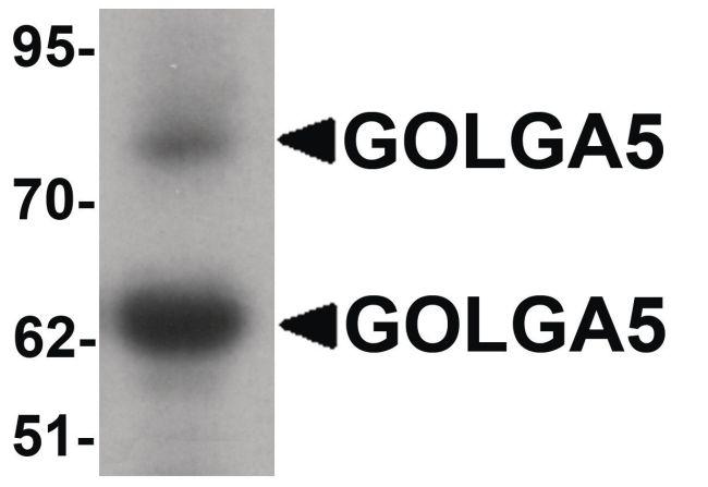 GOLGA5 Antibody (PA5-34563) in Western Blot