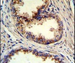 GOLPH3 Antibody (PA5-14347) in Immunohistochemistry