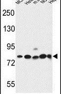 Gephyrin Antibody (PA5-26786) in Western Blot